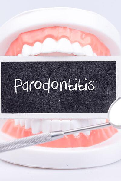 Parodontitis-Zahnarzt-trebur