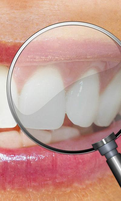 aesthetische-zahnbehandlung-trebur