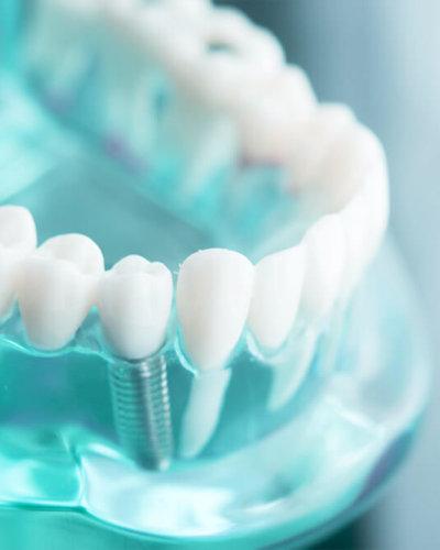 implantat-zahnarzt-trebur