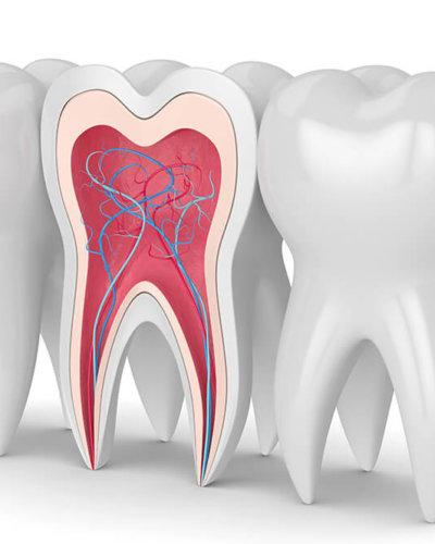 wurzelkanal-zahnarzt-trebur