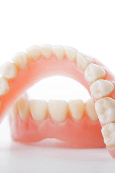 zahnprothesen-zahnarzt-trebur